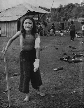 Wounded Vietnamese Girl
